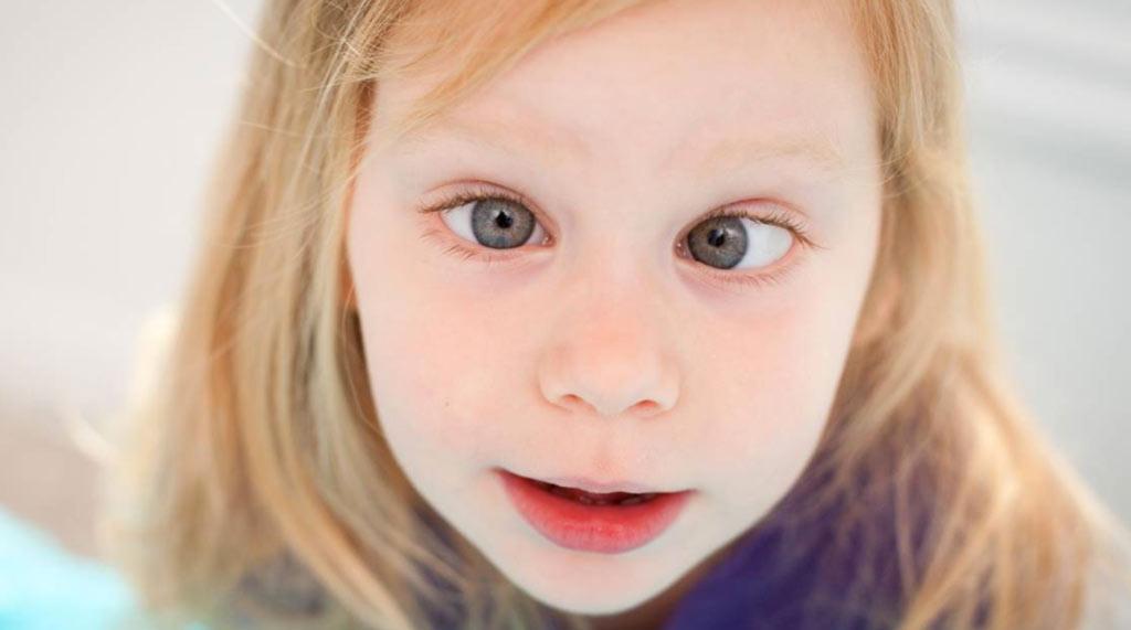çocuklarda_şaşılık_tedavisi