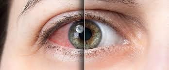 Gözümüz