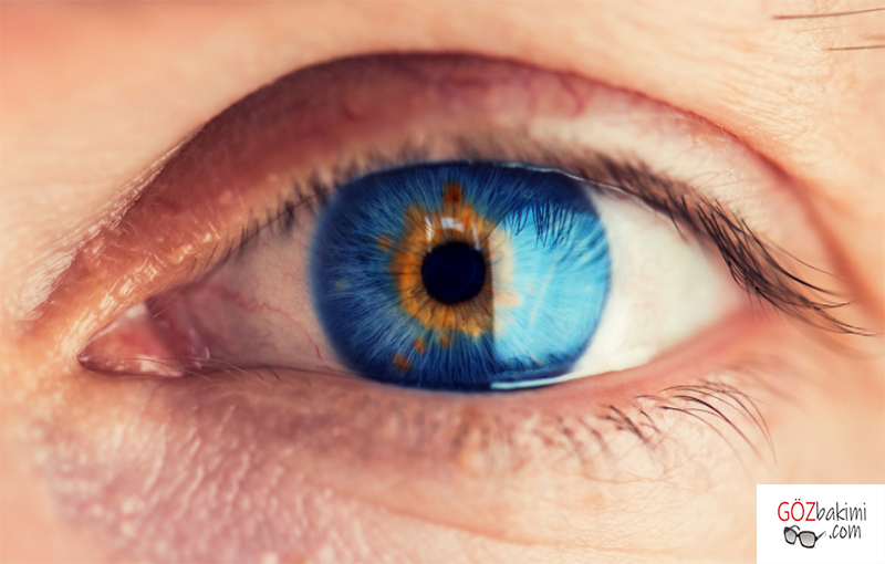 Sarı-nokta-hastalığı