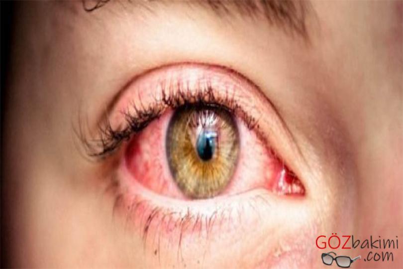 Retina migren (oküler migren)